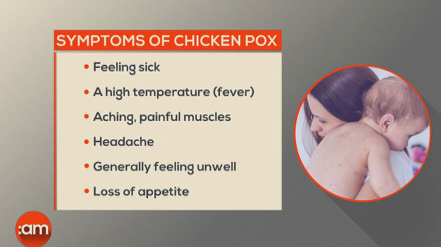 Chickenpox: Your Questions Answered
