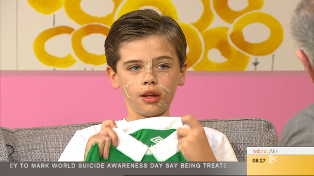 Cameron Lynch opens up about his vicious dog attack on 'Ireland AM'.
